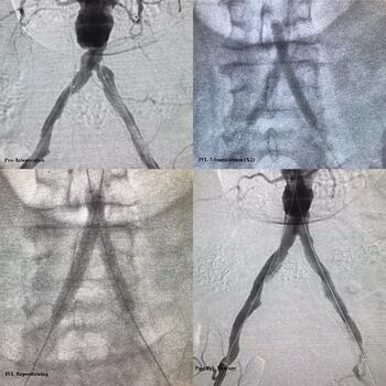 Bi-lateral Iliac Case for Donya Catalyst Post